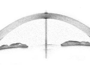 cornea pachimetria